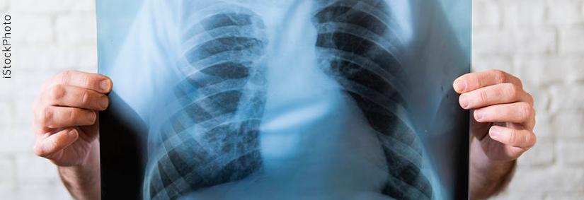 Tuberculose: o que é, quais os sintomas e como prevenir